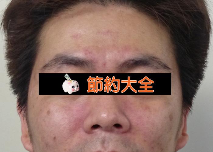 20150706-hadakabi (1)
